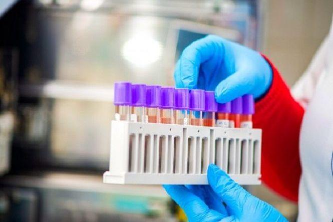 В області за добу виявили 46 нових випадків COVID-19. Дані по Вінниці та районах